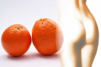 Skuteczna redukcja cellulitu - Jaki zabieg?